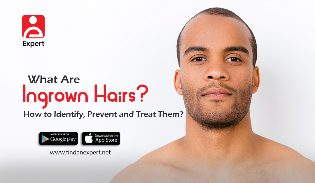 What Are Ingrown Hairs? How to Identify, Prevent and Treat Them?