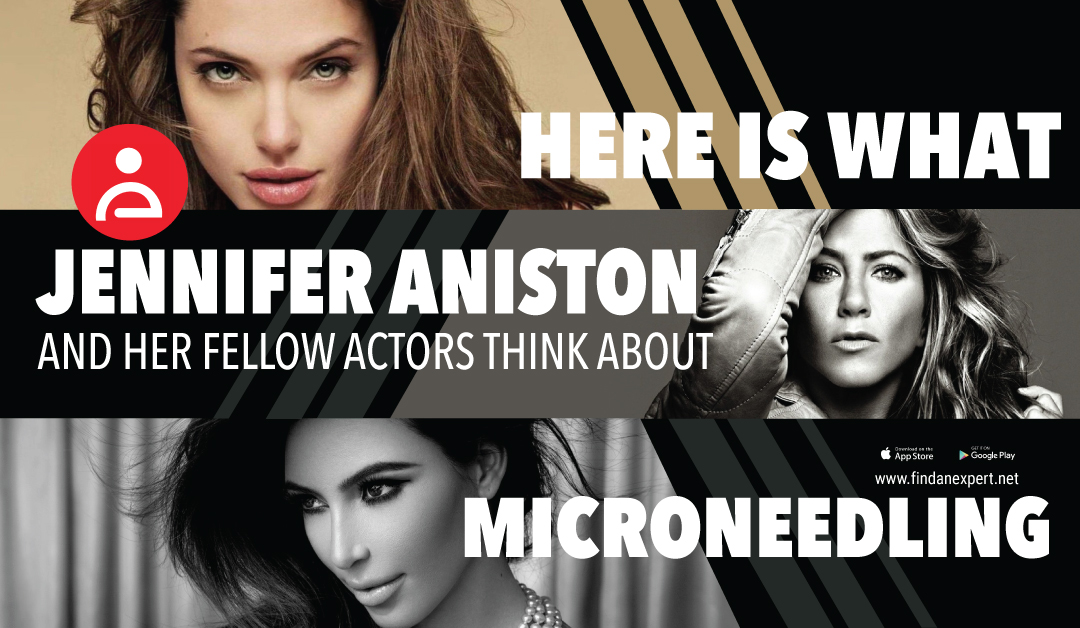 What Jennifer Aniston and her Fellow Actors think about Microneedling