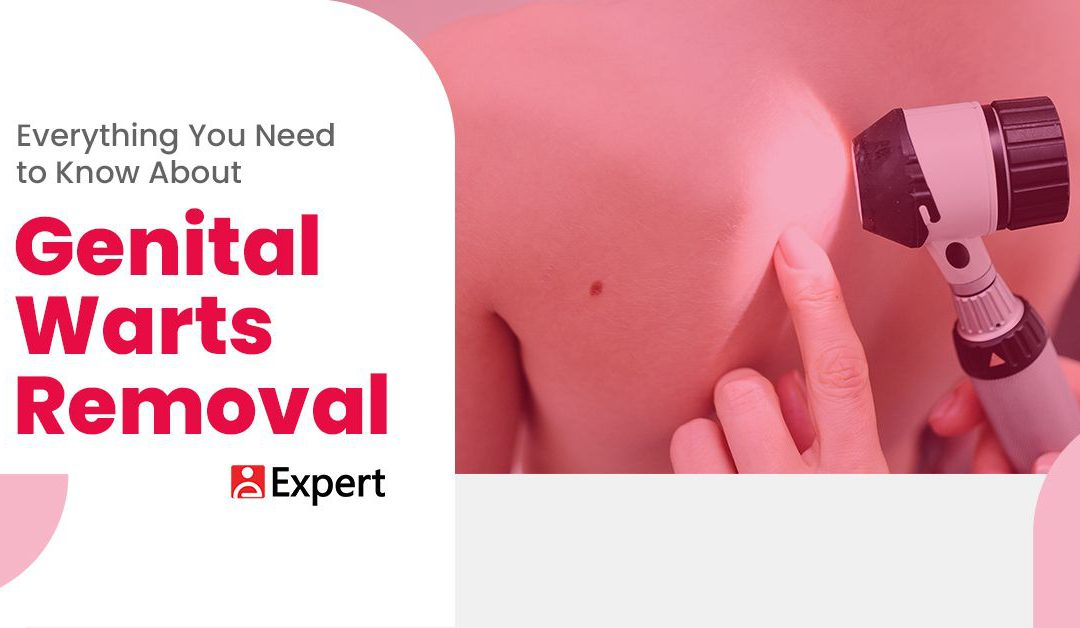 Everything You Need to Know About Genital Warts Removal